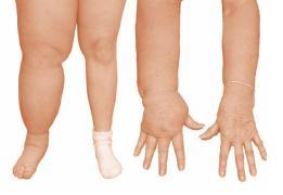 Lymfödem arm och ben